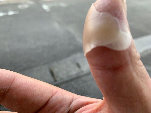 指を切った
