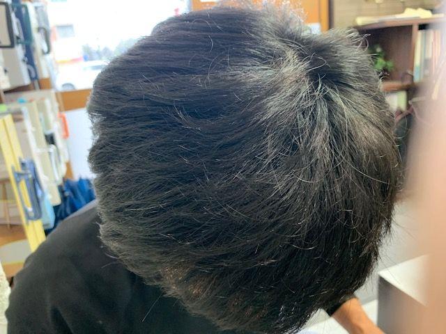 頭部の画像
